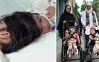Twins conjoined at the head are separated after 50 hours of surgery
